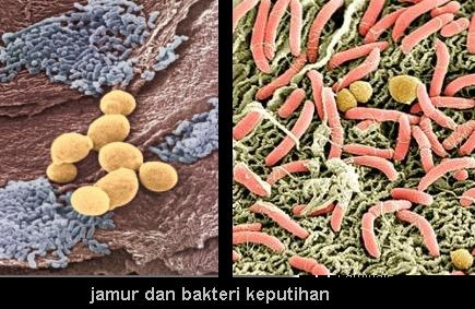 Bentuk Jamur dan Bakteri Penyebab Keputihan